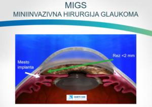 SVETI VID-Glaukom MIGS
