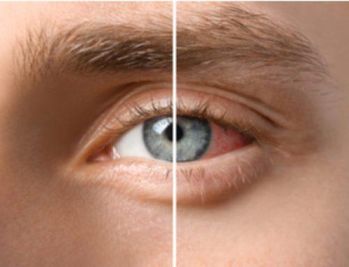 Uveitis zapaljenje oka – Šta je to?