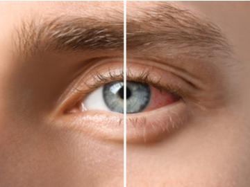 uveitis zapaljenje oka