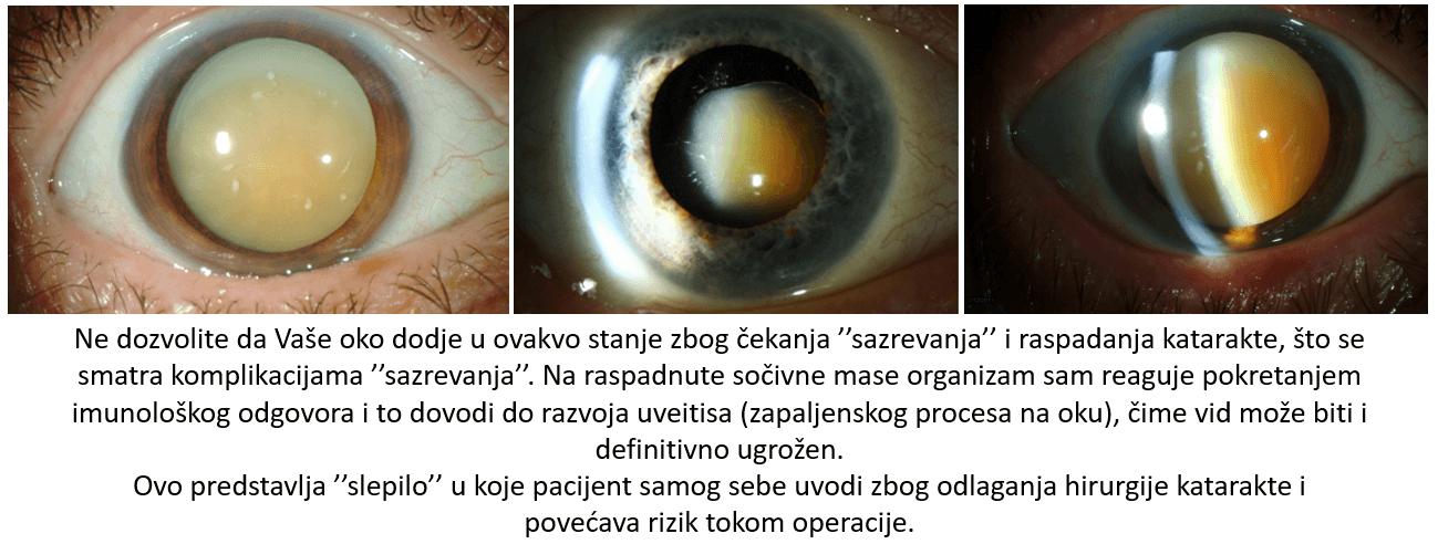 operacija katarakte sveti vid beograd
