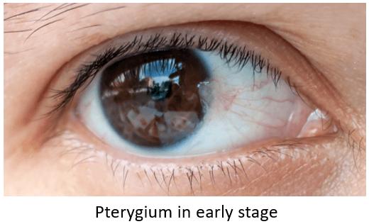 pterygium belgrade sveti vid