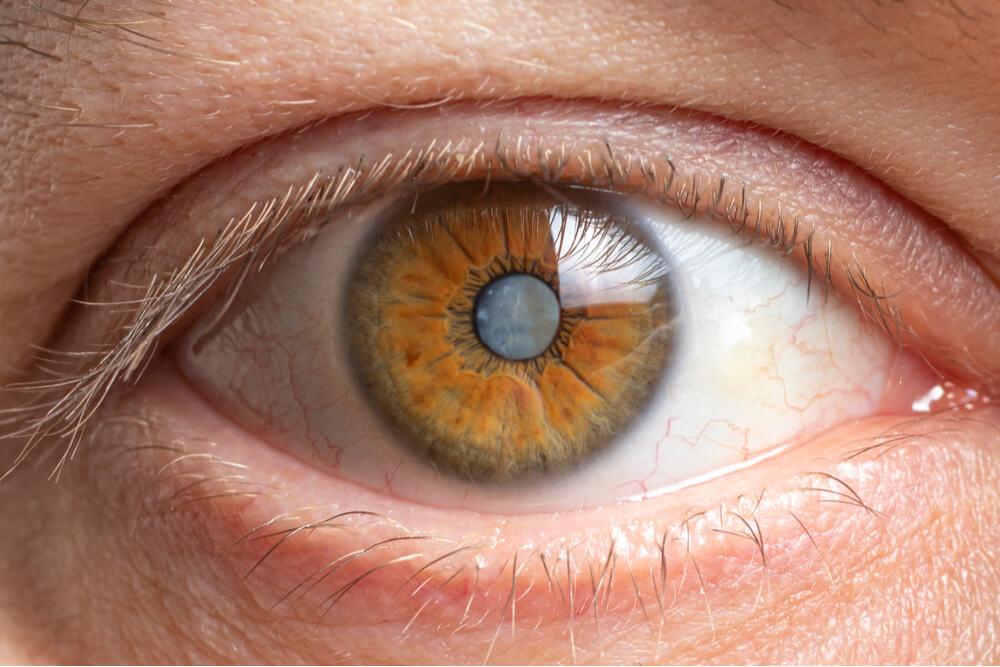 vrste katarakte