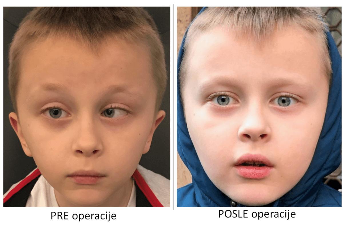 lečenje strabizama kod dece pre i posle